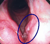 初期の喉頭癌